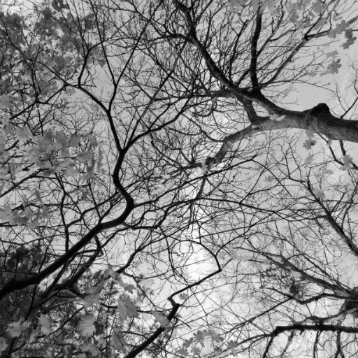 画像素材512✕512:木の写真(88:ロンドンの家近くで撮影した木の写真)